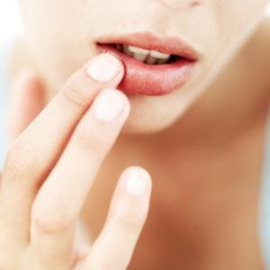 Как быстро вылечить герпес на губе